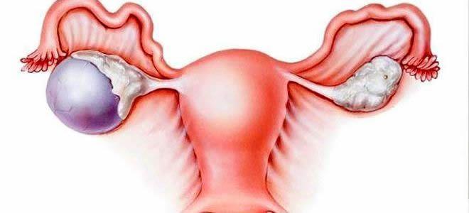 quiste de ovario sintomas y tratamiento